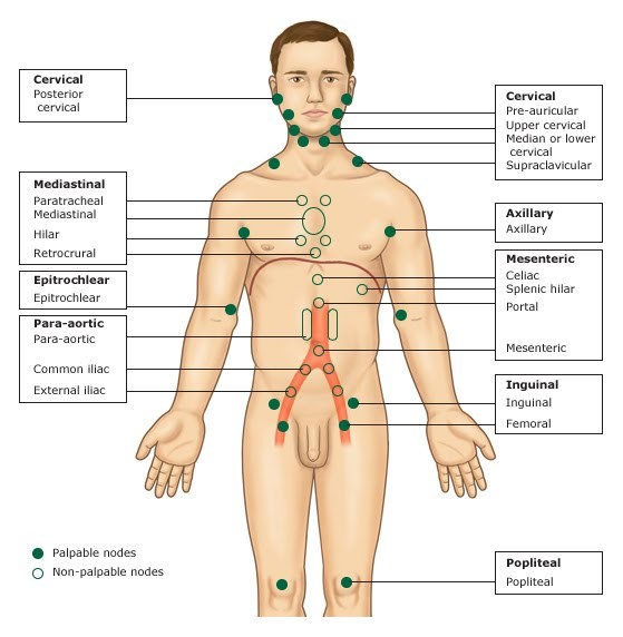 q72-96: assessment of nodal and organ involvement at diagnosis, Cephalic vein